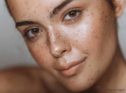 best skin lightening cream for hyperpigmentation for black skin