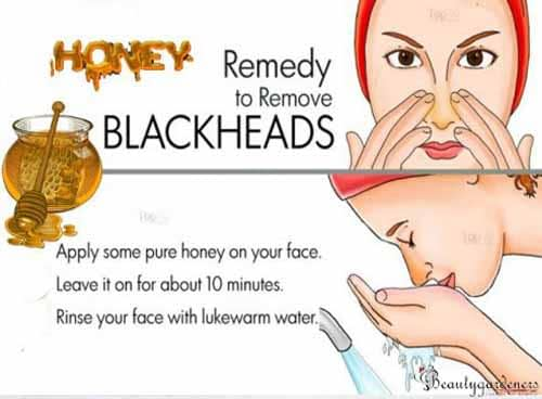 natural remedy for blackheads